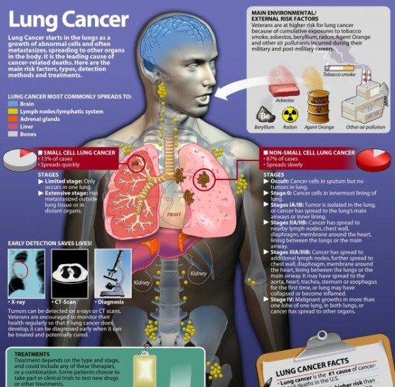 lung cancer facts & statistics 1